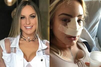 Monick Camargo faz cirurgia plástica no nariz