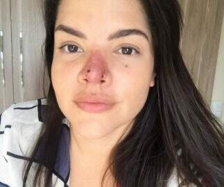 Jornalista faz procedimento estético e nariz fica necrosado