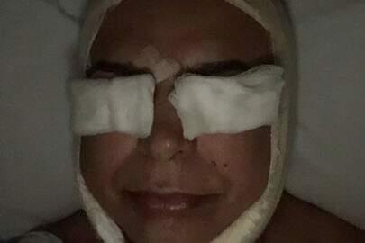 David Brazil passa por procedimentos estéticos no rosto e publica resultado