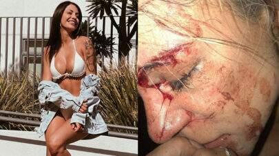 Ex de Biel, Duda Castro é acusada de agredir modelo amiga do cantor