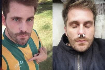 Com algodão no nariz, Thiago Gagliasso imita morto e divide opinões
