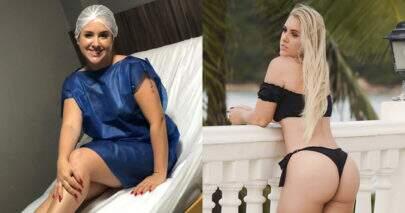 Ex-BBB Patrícia Leitte realiza nova cirurgia plástica para remover 'papada' e bochechas