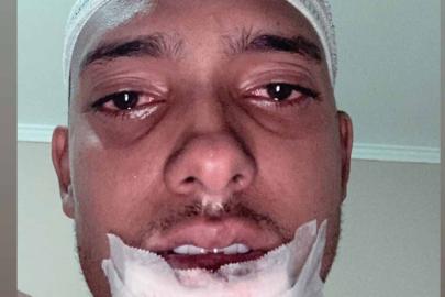 """Após acidente de moto, MC Brinquedo agradece apoio dos fãs: """"Só gratidão"""""""