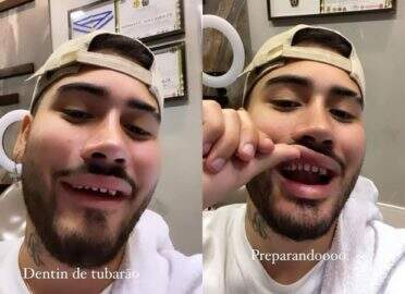 Kevinho mostra dentes sem lente de contato e gera memes na internet
