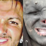 Jovem francês, Anthony Loffredo, faz procedimento para se parecer com alienígena e viraliza