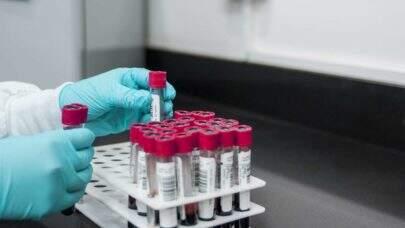 Nova pesquisa afirma que não há relação entre tipo sanguíneo e chances de ter COVID-19