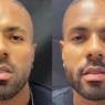 """Polidoro Júnior, ex-affair de Jojo Todynho, faz harmonização facial: """"Vou virar o Ken negro"""""""