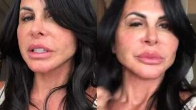 Gretchen mostra resultado de nova cirurgia plástica e recebe críticas: 'Eu amei e é isso que importa'
