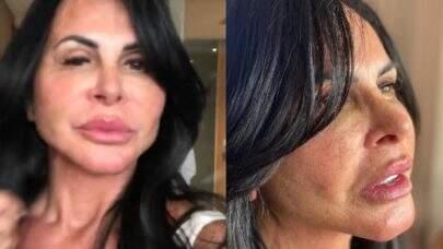 Gretchen rebate haters após críticas à cirurgia plástica: 'Somente passo por cima como um trator'